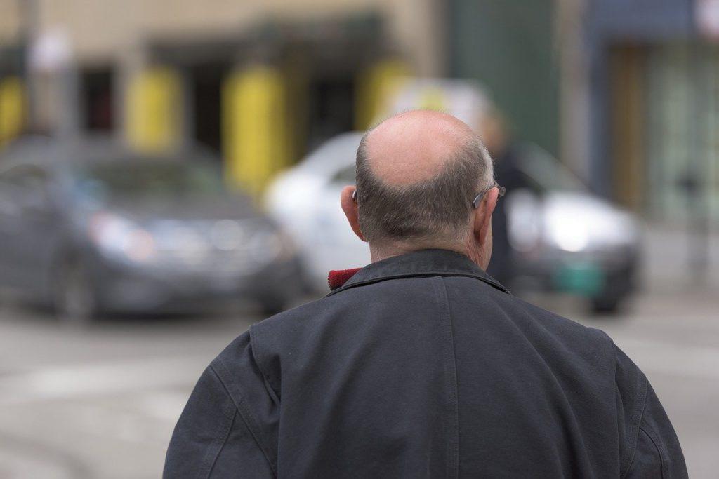 Waarom je niet bang hoeft te zijn om een haartransplantatie te ondergaan